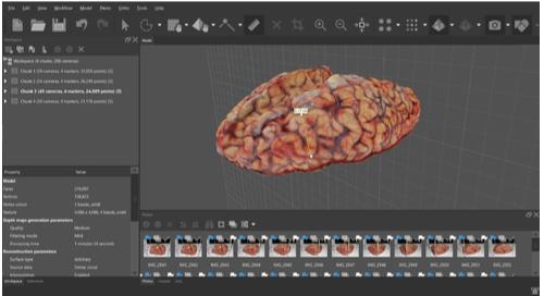 Renderización 3D de cortes de encéfalo